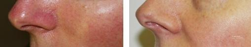 Spider Veins: Patient 2 - Before and After Image