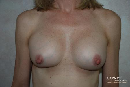 Breast-augmentation-revision: Patient 1 - After Image