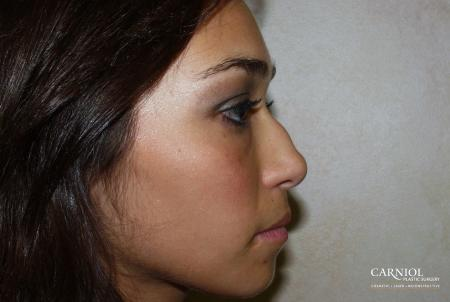 Rhinoplasty: Patient 2 - Before Image 1