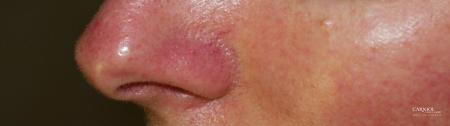 Rosacea: Patient 1 - Before Image