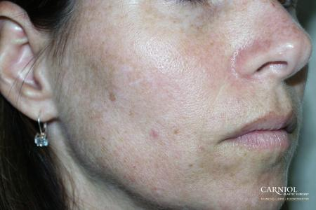 Fractional Resurfacing: Patient 4 - Before Image