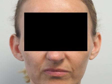 Otoplasty: Patient 3 - Before Image