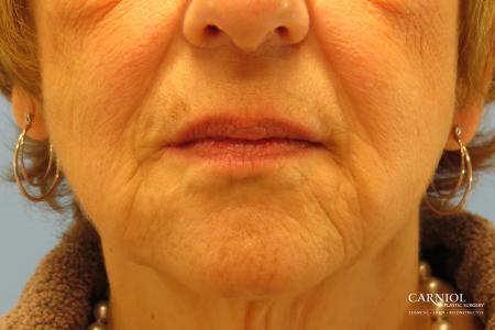 Non-Surgical Mini-Facelift: Patient 9 - After Image 1