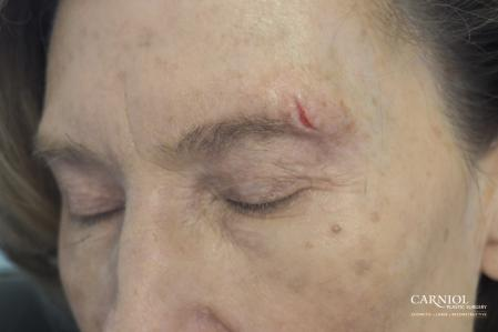 Scar Revision: Patient 4 - Before Image