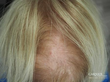 Nonsurgical Hair Restoration: Patient 3 - Before Image 1