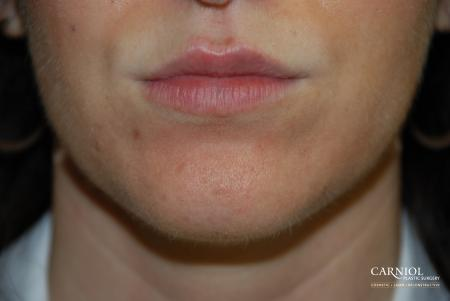 Lip Augmentation: Patient 2 - After Image 1