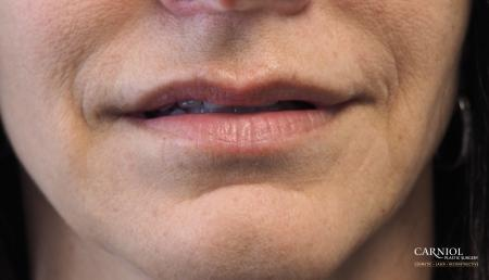 Lip Augmentation: Patient 8 - Before Image 1