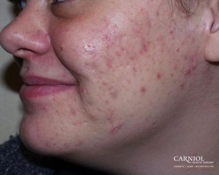 Acne Rejuvenation: Patient 1 - After Image