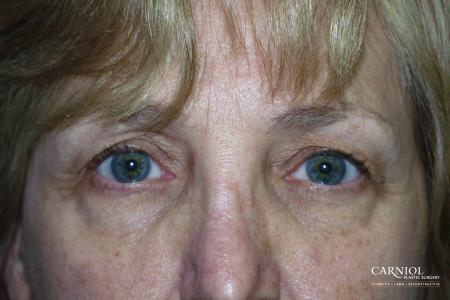 Eyelid Lift: Patient 4 - Before Image 1