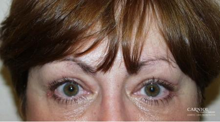 Eyelid Lift: Upper and Lower Blepharoplasty - After Image