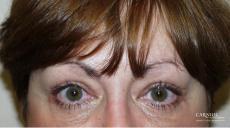 Eyelid Lift: Upper and Lower Blepharoplasty - After Image