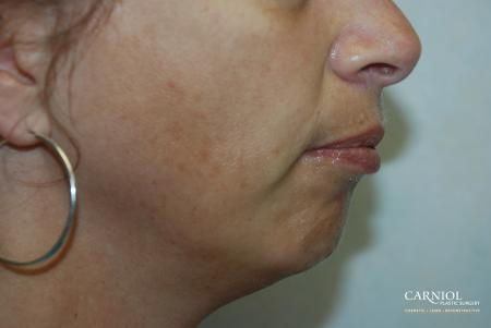 Non-Surgical Mini-Facelift: Patient 3 - Before Image