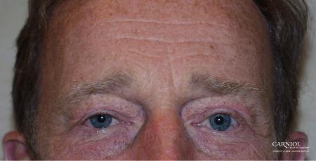 Eyelid Lift: Patient 3 - After Image