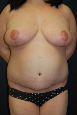 Traditional Mastopexy Without Implants: Patient 10 - After Image
