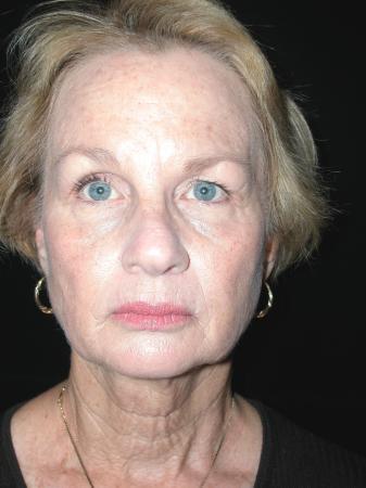 Facelift: Patient 5 - Before Image