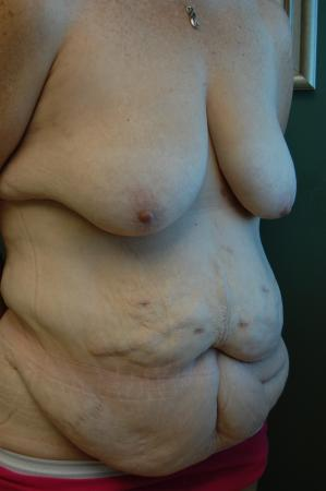 Traditional Mastopexy With Implants: Patient 12 - Before and After Image 2