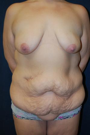 Traditional Mastopexy With Implants: Patient 2 - Before Image