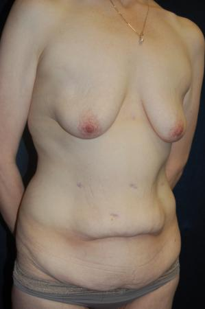 Traditional Mastopexy With Implants: Patient 18 - Before and After Image 3