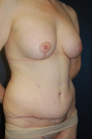 Traditional Mastopexy With Implants: Patient 18 - After Image 3