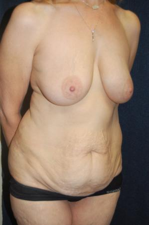 Traditional Mastopexy With Implants: Patient 16 - Before and After Image 3