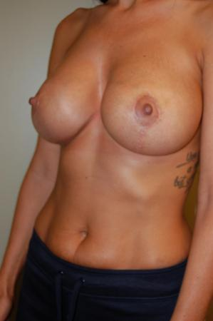 Traditional Mastopexy With Implants: Patient 1 - After Image 2