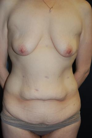 Traditional Mastopexy With Implants: Patient 18 - Before Image