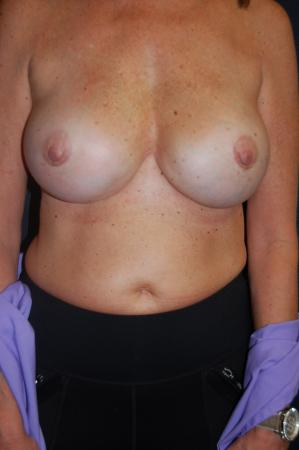 Post Implant Reoperation: Patient 9 - After Image