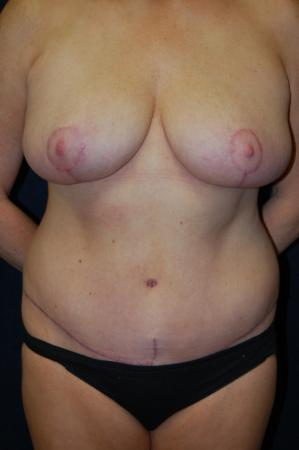 Traditional Mastopexy Without Implants: Patient 6 - After Image