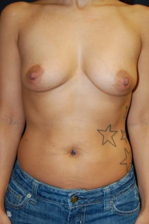 Breast Augmentation: Patient 8 - Before Image