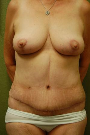Traditional Mastopexy Without Implants: Patient 4 - After Image