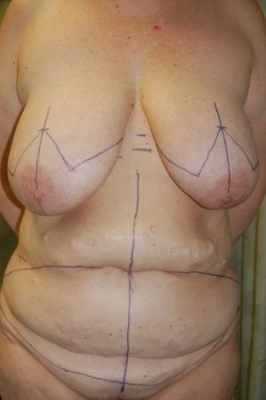 Mommy Makeover: Patient 1 - Before Image