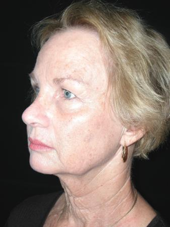 Facelift: Patient 5 - Before and After Image 2