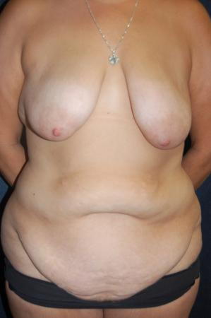 Traditional Mastopexy With Implants: Patient 21 - Before Image