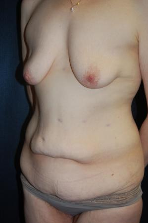 Traditional Mastopexy With Implants: Patient 18 - Before Image 2