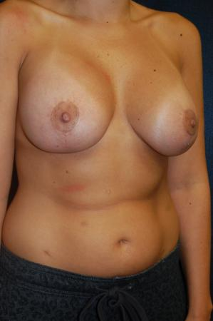 Traditional Mastopexy With Implants: Patient 13 - After Image 2