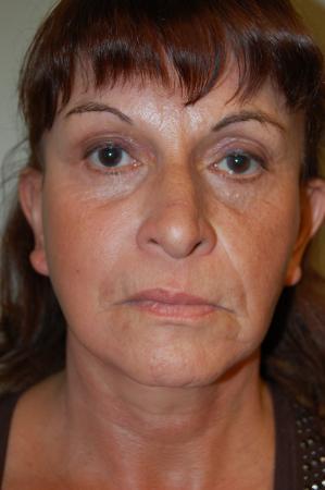 Facelift: Patient 1 - After Image 1