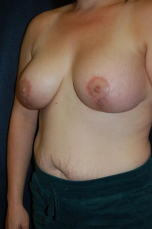 Traditional Mastopexy With Implants: Patient 19 - After Image 3