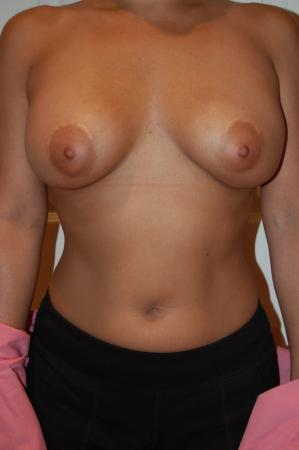 Post Implant Reoperation: Patient 3 - Before Image