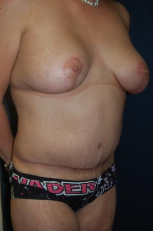 Traditional Mastopexy With Implants: Patient 20 - After Image 3
