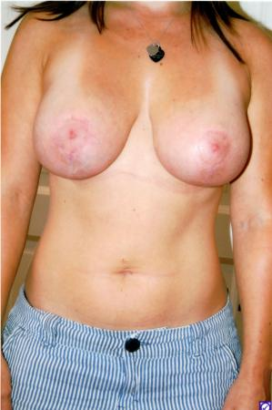 Post Implant Reoperation: Patient 5 - After Image