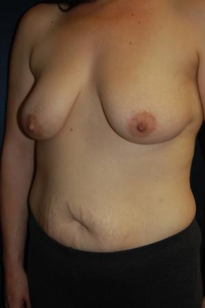 Traditional Mastopexy With Implants: Patient 19 - Before and After Image 3