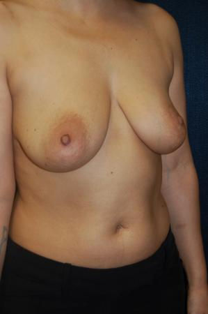 Traditional Mastopexy With Implants: Patient 10 - Before and After Image 2