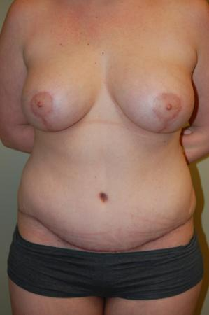 Mommy Makeover: Patient 3 - After Image