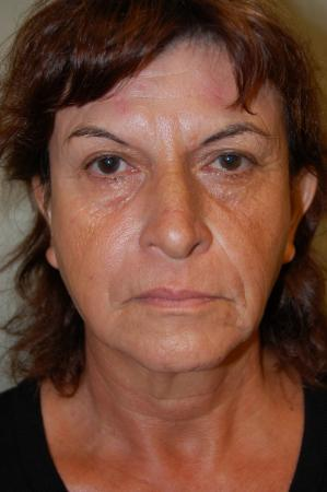 Facelift: Patient 1 - Before Image 1