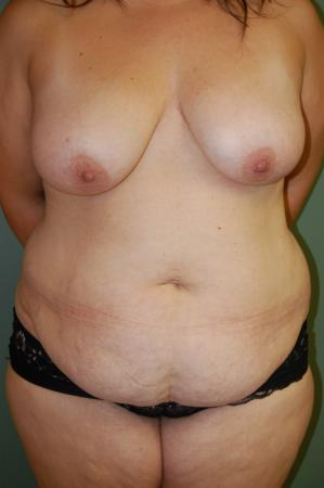Traditional Mastopexy Without Implants: Patient 3 - Before Image