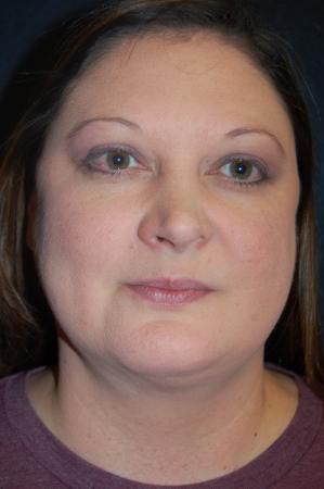 Liposuction: Patient 5 - After Image