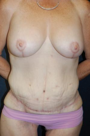 Traditional Mastopexy With Implants: Patient 12 - After Image