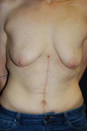 Traditional Mastopexy With Implants: Patient 17 - Before Image