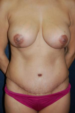 Post Implant Reoperation: Patient 10 - After Image