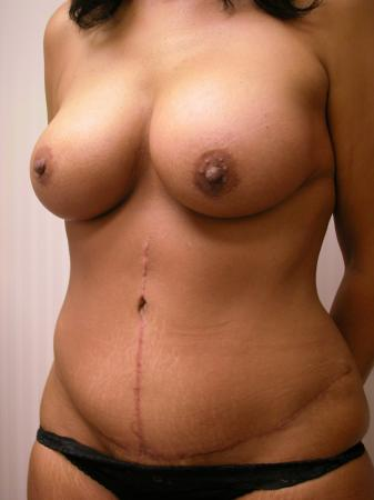 Post Bariatric Reconstruction: Patient 3 - After Image